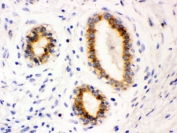 IHC testing of FFPE human breast cancer tissue with Bcl-2 antibody. HIER: Boil the paraffin sections in pH 6, 10mM citrate buffer for 20 minutes and allow to cool prior to testing.