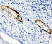 IHC testing of FFPE human intestinal cancer with Caldesmon antibody (clone CD-7). HIER: steamed with pH6 citrate buffer.