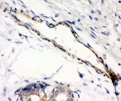 IHC testing of FFPE human breast cancer with Caldesmon antibody (clone CD-7). HIER: steamed with pH6 citrate buffer.