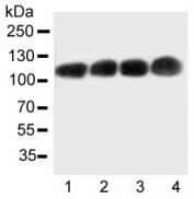 Western blot testing of CEA antibody and Lane 1:  Recombinant human CEA protein 10ng;  Lane 2:  5ng;  3: 2.5ng;  4: 1.25ng
