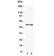 Western blot testing of Tryptophan Hydroxylase antibody and Lane 1:  rat brain (lot 1);  2: rat brain (lot 2) tissue lysate. Predicted molecular weight ~51 kDa.