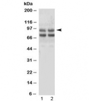 Western blot testing of human 1) SMMC-7721 and 2) HepG2 cell lysate with Angiostatin K1-3 antibody. Expected molecular weight of Plasminogen: 90-95 kDa.