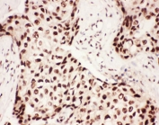 IHC-P: 5-Lipoxygenase antibody testing of human breast cancer tissue