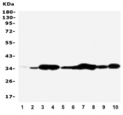 Western blot testing of Annexin V antibody and Lane 1:  rat brain;  2: rat skeletal muscle;  3: rat ovary;  4: rat lung;  5: MCF-7;  6: SMMC-7721;  7: A549;  8: Jurkat;  9: SGC;  10: HT1080;  Predicted molecular weight ~36 kDa.