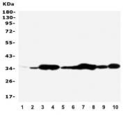 Western blot testing of Annexin V antibody and Lane 1:  rat brain;  2: rat skeletal muscle;  3: rat ovary;  4: rat lung;  5: MCF-7;  6: SMMC-7721;  7: A549;  8: Jurkat;  9: SGC;  10: HT1080;  Predicted molecular weight ~36 kDa.