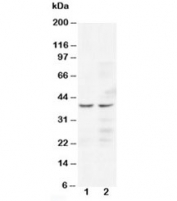 Western blot testing of CCR5 antibody and human Lane 1:  Jurkat;  2: COLO320 cell lysate. Predicted/observed molecular weight ~41 kDa.
