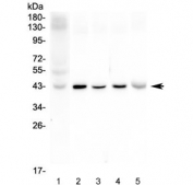 Western blot testing of Connexin 43 antibody and rat samples Lane 1:  heart;  2: heart;  3: brain tissue lysate. Predicted molecular weight: 43 kDa