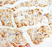 IHC-P: PMVK antibody testing of rat skeletal muscle tissue