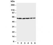 Western blot testing of HSP60 antibody and Lane 1:  rat brain;  2: rat liver;  3: CEM;  4: HeLa;  5: SMMC-7721;  6: COLO320 cell lysate