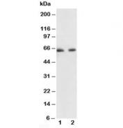 Western blot testing of p65 antibody and Lane 1:  human colon cancer;  2: HeLa lysate. Expected molecular weight ~65 kDa.