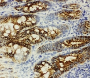 IHC-F: beta Catenin antibody testing of rat intestine tissue