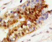 IHC-P: HSC70 antibody testing of human breast cancer tissue