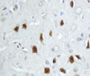 IHC-P testing of rat brain tissue with HSC70 antibody.