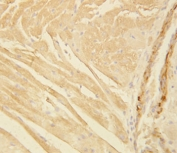 IHC-P: Actin antibody testing of rat heart tissue. HIER: steamed with pH6 citrate buffer.