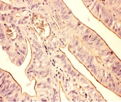 IHC-P: Actin antibody testing of human intestinal cancer tissue