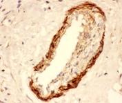 IHC-P: Actin antibody testing of human breast cancer tissue