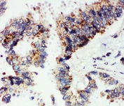 IHC-P: Angiopoietin 1 antibody testing of human lung cancer tissue