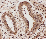 IHC-P: GAPDH antibody testing of human breast cancer tissue
