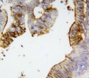 IHC-P: Annexin A2 antibody testing of human intestinal cancer tissue