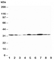 Western blot testing of Connexin 32 antibody and Lane 1:  rat heart;  2: (r) heart;  3: (r) skeletal muscle;  4: (r) brain;  5: human MCF-7;  6: (h) HeLa;  7: (h) SMMC-7721;  8: (h) Jurkat;  9: (h) COLO320 lysate. Predicted molecular weight ~32 kDa.