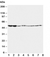 Western blot testing of 5HT2A Receptor antibody and Lane 1:  rat brain;  2: rat brain;  3: mouse brain;  4: mouse brain and human samples  5: U87;  6: SMMC-7721;  7: HT1080;  8: COLO320. Predicted/observed molecular weight ~53kDa.