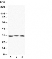 Western blot testing of Apolipoprotein D antibody and Lane 1:  MCF-7;  2: HeLa;  3: SMMC-7721 cell lysate. Predicted molecular weight: ~21/21-33kDa (unmodified/glycosylated).