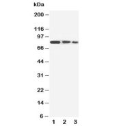 Western blot testing of CD105 antibody and Lane 1:  recombinant human protein 10ng;  2: 5ng;  3: 2.5ng. Observed molecular weight: 70/90 kDa (monomer, unmodified/glycosylated); 140-180 kDa (dimer, unmodified/glycosylated).