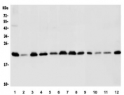 Western blot testing of human 1) PC-3, 2) HEK293, 3) Jurkat, 4) Caco-2, 5) U-2 OS, 6) HepG-2, 7) HeLa, 8) A549, 9) rat heart, 10) rat lung, 11) mouse heart and 12) mouse lung lysate with BAK antibody. Expected molecular weight ~23 kDa.