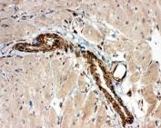 IHC-F testing of ADAMTS2 antibody and rat heart tissue