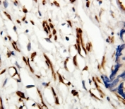 IHC-P: Androgen Receptor antibody testing of human prostate cancer tissue. HIER: steamed with pH6 citrate buffer.