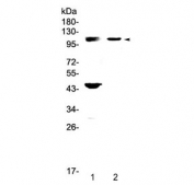 Western blot testing of Androgen Receptor antibody and 1) human HeLa and 2) mouse pancreas lysate. Expected molecular weight: 99-110 kDa.