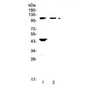 Western blot testing of Androgen Receptor antibody and 1) human HeLa and 2) mouse pancreas lysate. Expected molecular weight: 99-110 kDa.
