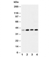 Western blot testing of IGFBP3 antibody and Lane 1:  293T;  2: MCF- 7;  3: A549;  4: SW620.  Expected molecular weight: ~31/40-44 kDa (unmodified/glycosylated).