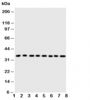 Western blot testing of Annexin A3 antibody and Lane 1:  rat brain;  2: (r) testis;  3: (r) skeletal muscle;  4: (r) lung;  5: human SW620;  6: (h) HeLa;  7: (h) SMMC-7721;  8: (h) MCF-7 cell lysate. Predicted/observed molecular weight ~36kDa.