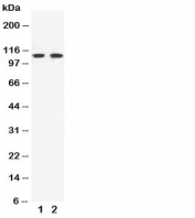 Western blot testing of EphB3 antibody and Lane 1:  HeLa;  2: A549 cell lysate