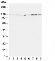 Western blot testing of EphA1 antibody and Lane 1:  rat liver;  2: (r) lung;  3: (r) intestine;  4: (r) ovary;  5: U87;  6: A549;  7: COLO320;  8: SW620;  9: HeLa cell lysate. Predicted molecular weight: ~108kDa.