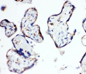 IHC-P: HSD17B1 antibody testing of human placenta tissue. Required HIER: steam section in pH6 citrate buffer for 20 min.