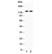 Western blot testing of Integrin alpha E antibody and human cell lysate: 1.  Jurkat, 2. Raji;  Predicted molecular weight ~130 kDa.