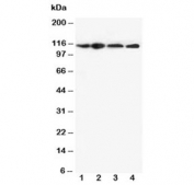 Western blot testing of NLRP3 antibody and Lane 1:  HEP-2;  2: A549;  3: U87;  4: CEM cell lysate. Predicted molecular weight ~118kDa.
