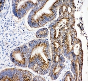 IHC-P: 17-beta-Hydroxysteroid dehydrogenase 4 antibody testing of human intestinal cancer tissue. Required HIER: steam section in pH6 citrate buffer for 20 min.