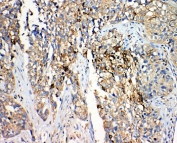 IHC-P: 17-beta-Hydroxysteroid dehydrogenase 4 antibody testing of human lung cancer tissue. Required HIER: steam section in pH6 citrate buffer for 20 min.