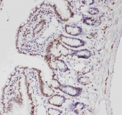 IHC staining of FFPE rat intestine with ALK antibody. HIER: boil tissue sections in pH6 citrate buffer for 20 min and allow to cool before testing.