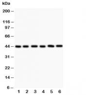 Western blot testing of IL2RA antibody and Lane 1:  SMMC-7721;  2: A549;  3: Jurkat;  4: MCF-7;  5: Raji;  6: PANC;  Predicted size: 25~45KD depending on level of glycosylation
