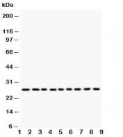 Western blot testing of Kallikrein 6 antibody and human lysate samples: 1)  MCF-7;  2) HeLa;  3) MM231;  4) MM453;  5) A549;  6) SMMC-7721;  7) COLO320;  8) SW620;  9) HT1080. Predicted molecular weight: ~27 kDa.