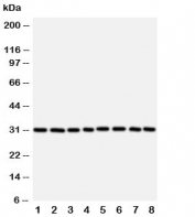 Western blot testing of VDAC1 antibody and Lane 1:  rat skeletal muscle;  2: (r) heart;  3: (r) liver; and human samples 4: HeLa;  5: A431;  6: A549;  7: SMMC-7721;  8: HT1080 cell lysate.  Expected/observed molecular weight: ~31kDa.