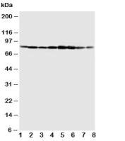 Western blot testing of MCM7 antibody and Lane 1:  COLO320;  2: SW620;  3: HeLa;  4: 22RVL;  5: 293T;  6: U937;  7: Jurkat;  8: Raji cell lysate.  Expected size 80~90KD