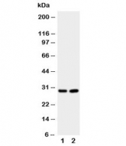 Western blot testing of Prion protein antibody and Lane 1:  rat brain;  2: rat brain.  Expected molecular weight: 20~29kDa.