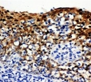 IHC-P: 14-3-3 sigma antibody testing of human tonsil tissue. HIER: boil tissue sections in pH6, 10mM citrate buffer, for 20 min and allow to cool before testing.