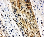 IHC-P: 14-3-3 sigma antibody testing of human oesophagus squama cancer tissue