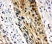 IHC-P: 14-3-3 sigma antibody testing of human oesophagus squama cancer tissue